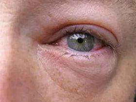 при аллергии отекает веко