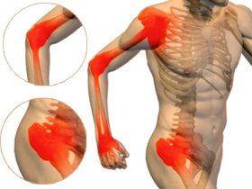 Боль в суставах при аллергии 5 хруст в суставе крепитация