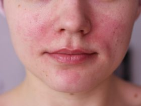 Покраснения при аллергии