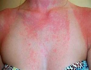 Аллергия на бисептол у ребенка фото