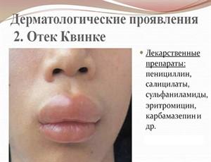 allergiya-na-ukusy-komarov2_300x230