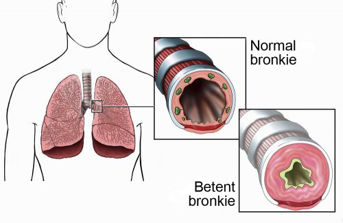 Бронхи здорового человека и больного бериллиозом.