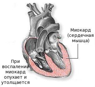 miokardit1