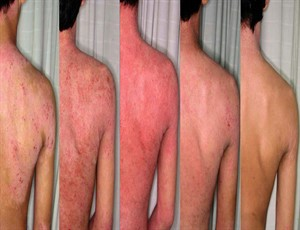 neurodermitis-ursachen-und-therapie201503101_300x230