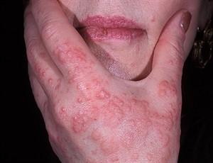 Эритема - лечение, причины, симптомы