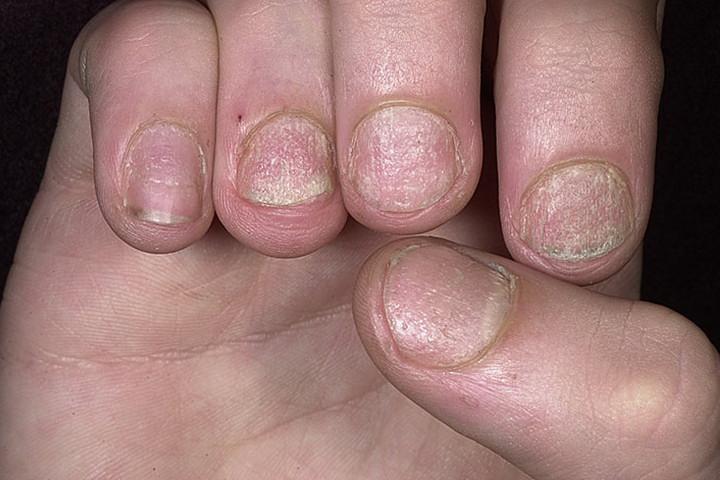 Аллергия на наращивание ногтей лечение