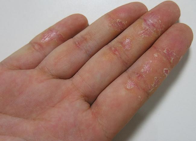 Препарат против атопического дерматита