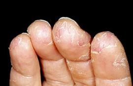 Экзема на ногтях рук — клинические проявления, диагностика, лечение
