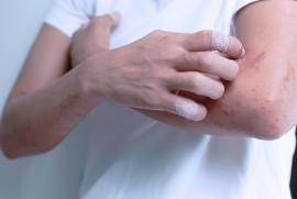 Аллергическая экзема: причины, симптомы, как лечить