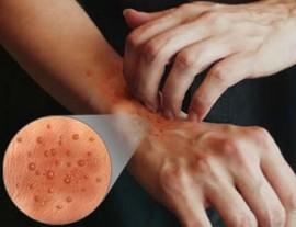 Дисгидротическая экзема или дисгидроз: причины, симптомы и лечение