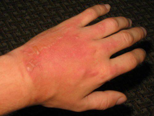 как выглядит аллергия на борщевик