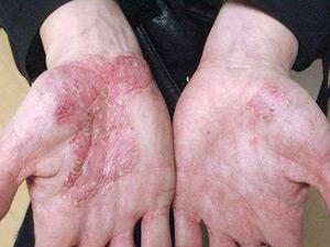 Гомеопатия от атопического дерматита отзывы