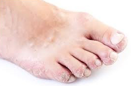 Сухая экзема на ногах: особенности болезни, признаки и лечение