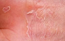 Сухая экзема: как лечить заболевание и не допускать рецидивов?