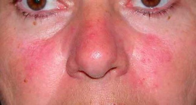 Спровоцировать патологические высыпания на эпидермисе лица может также купание в водоеме, контакт с ледяной водой при умывании