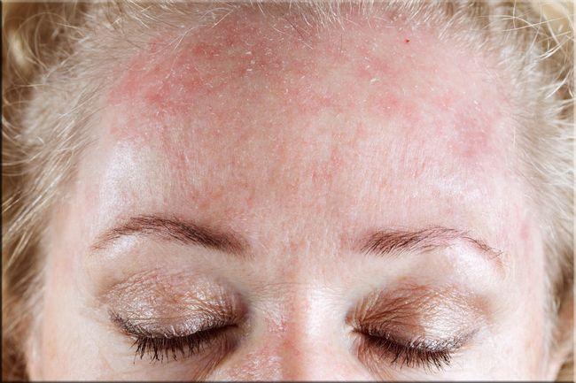 Аллергия на холод на лице – это болезненные высыпания и отечность, которые вызывают массу неудобств и дискомфорта