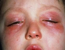 Аллергия глаз на холод: что это такое, как вылечить недуг?