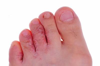 Нередко признаки заболевания возникают и при +4°C, что может быть обусловлено высокой чувствительностью кожи к любому внешнему воздействию