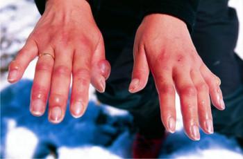 Аллергия на холод руки