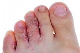 Экзема на пальцах ног — как вылечить дерматоз и устранить симптомы?