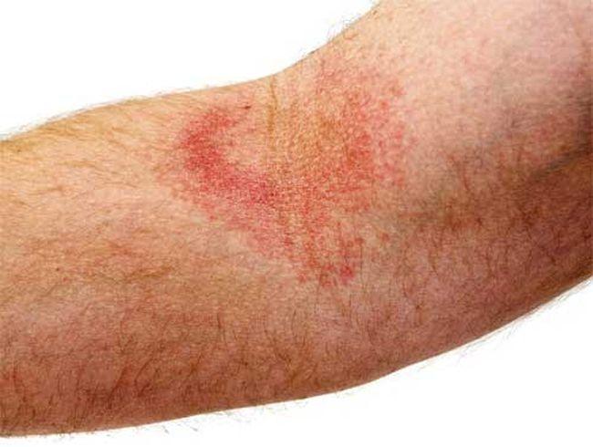 проявление экземы складок на руке