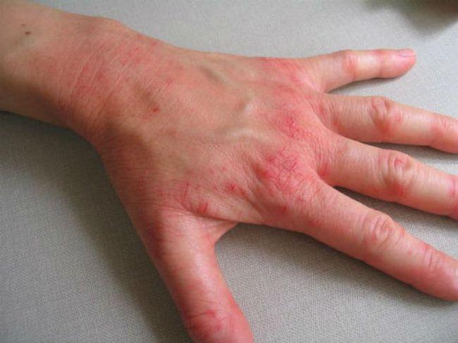 Хроническая экзема на кисти руки