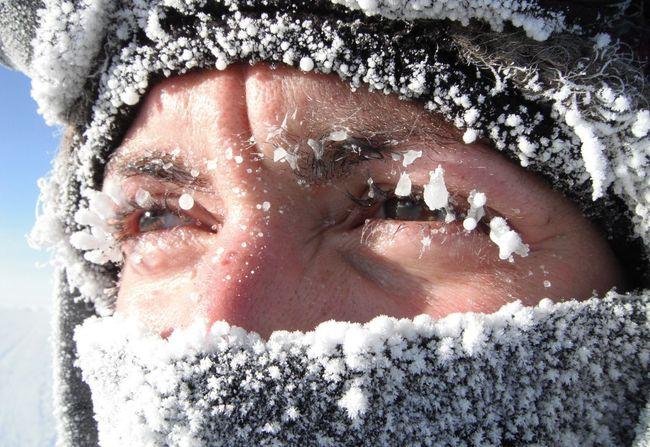 Холодовую аллергию необходимо начинать лечить при первый ее проявлениях