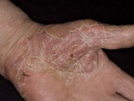 Как восстановить кожу после экземы: аптечные крема, народные средства, советы врачей