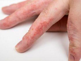 Экзема на пальцах рук.