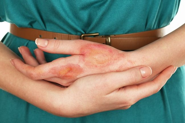 На фото микробная экзема на руке.