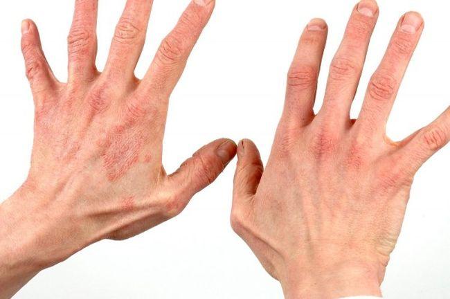 Проявление сухой экземы на кистях рук.