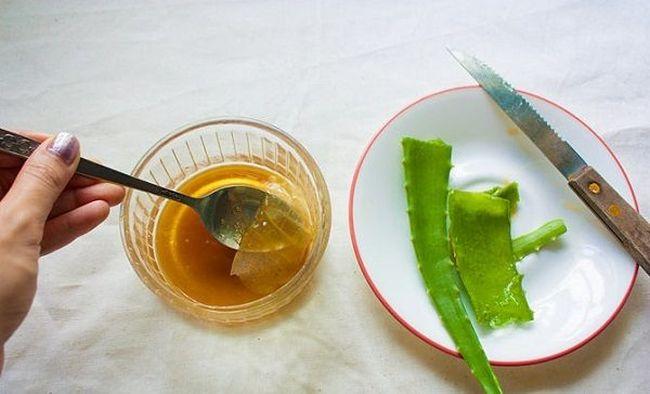 Мазь из меда и алоэ - отличное народное средство для лечения микробной экземы.