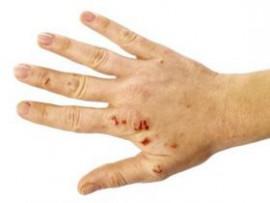 Отличие экземы от псориаза: разница в причинах, симптомах и лечении