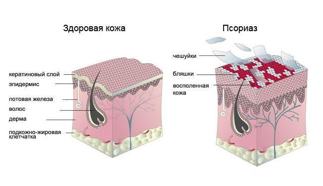 Что такое псориаз и как он поражает кожу человека.