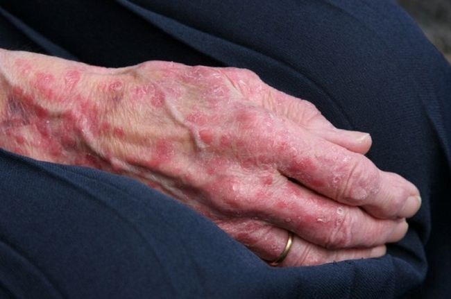 Солнечная экзема на руке.