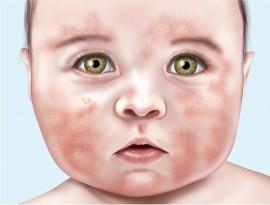 Нуммулярная экзема у ребенка: причины болезни, симптомы, советы врачей
