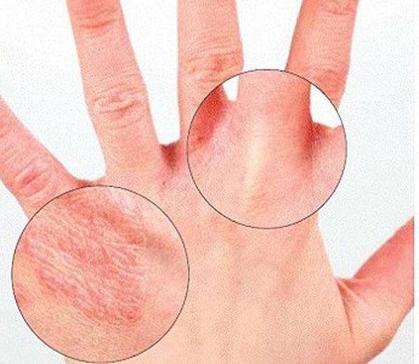 Грибок на пальцах руках чем лечить в домашних условиях