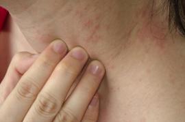 Как уменьшить проявления аллергии на коже домашними методами