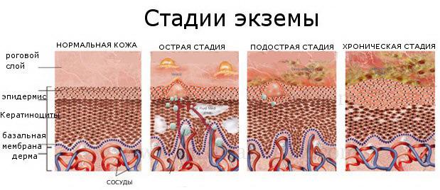 Разновидности экземы